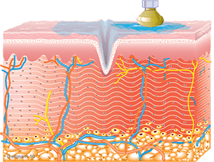 Image of Collagen Synthesis Begins