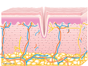 Image of Untreated Skin